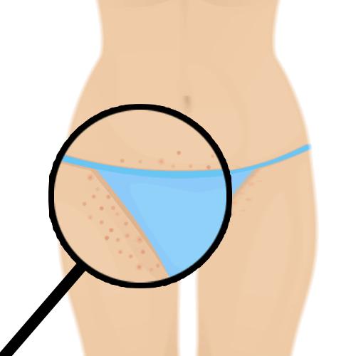 Rasieren Ohne Pickel Zu Bekommen Das Sind Die 3 Besten Tipps